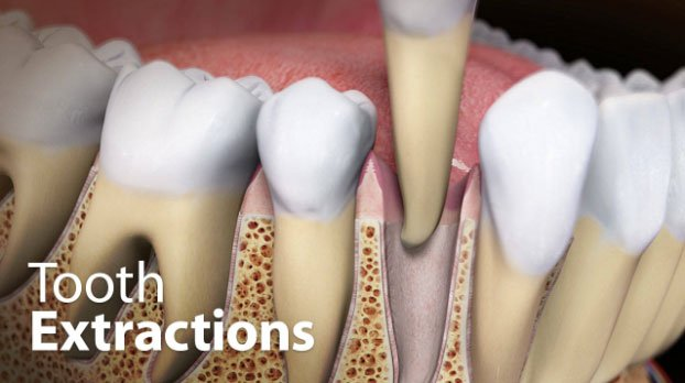 Dental Extraction Aftercare Questions And Answers