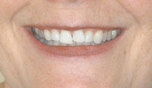 WORN TEETH: AN IN-DEPTH LOOK AT THIS PROBLEM AND ITS SOLUTIONS