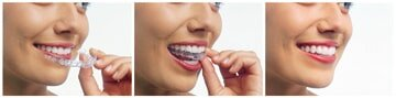 Restorations — Invisalign on Teeth in Riverside, CA