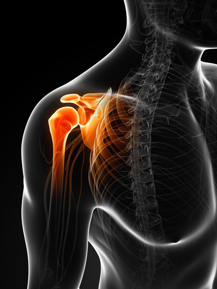 Physical Therapist's Guide To Acromioclavicular (AC) Joint Injuries