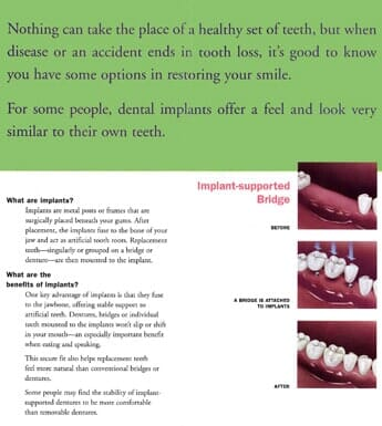 Tooth Extraction - Wausau, WI - Susan A Stacker D D S , S C