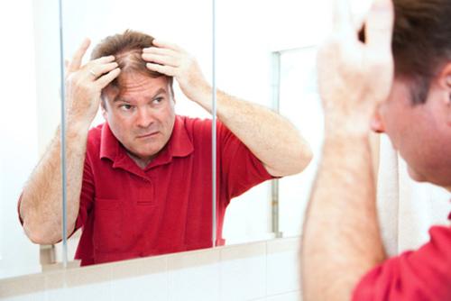 Hair Restoration Tucson Az Professional Hair Clinic Of Arizona
