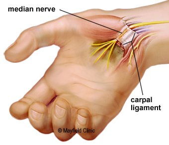 Image result for carpal tunnel