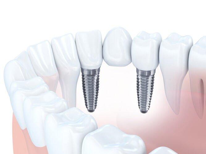 Dental Implant — Dental Implant Bridge in Owensboro, KY