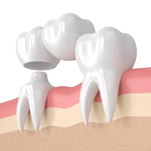 Bridgework — 3d Render of Teeth with Dental Cantilever Bridge in Owensboro, KY