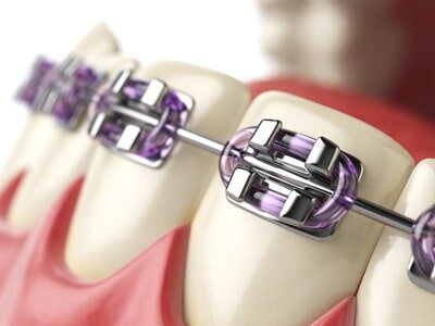 Braces — Teeth with Braces or Brackets in Open Human Mouth in Owensboro, KY