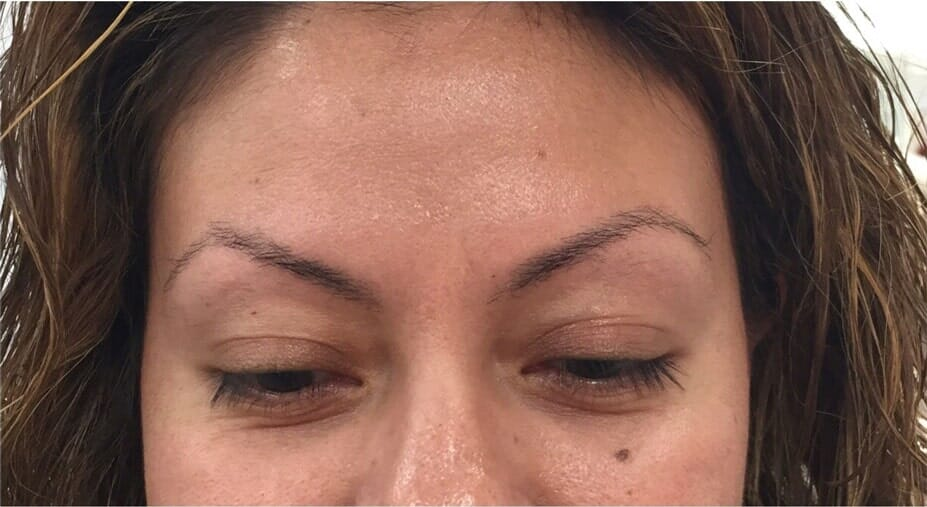 Woman eyebrow initial procedure — Eyebrow Microblading in Fort Worth, TX