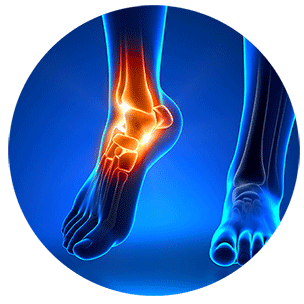 Ankle healing illustration — Foot and Ankle Surgeons in New York, NY