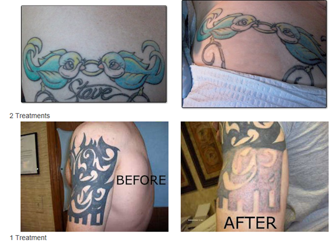 Tattoo Removal | Marysville, WA | Define Gorgeous LLC.