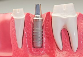 Wanting a Better Smile? Consider Tooth Reshaping Treatments
